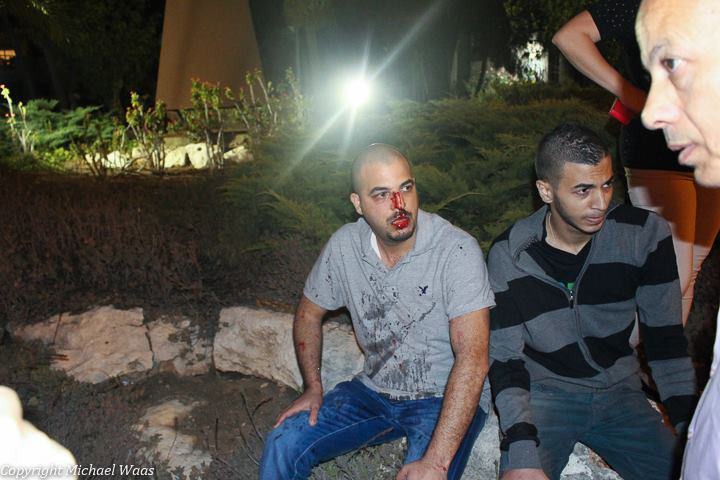 Demonstrator wounded from a glass bottle thrown by a right-winger